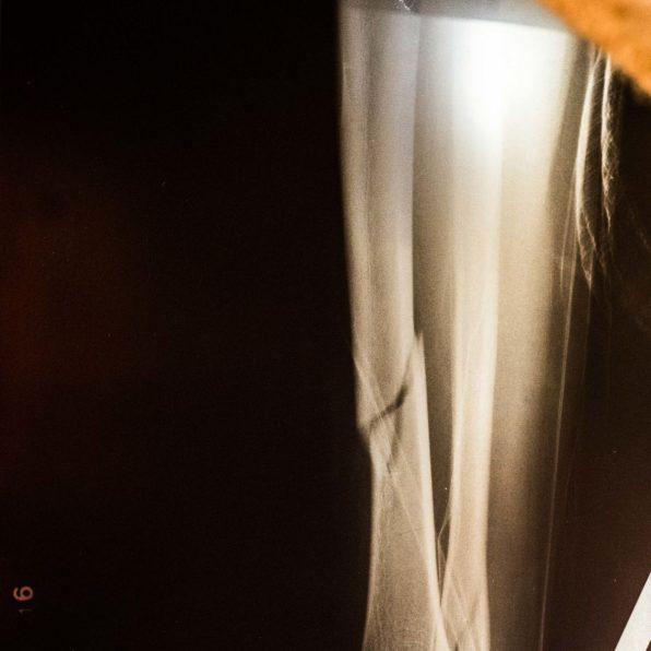 X-ray -Oksana-5665