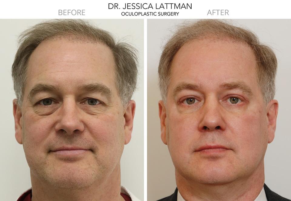 Blepharoplasty Eyelid Surgeon NYC   Eyelid Lift New York ...