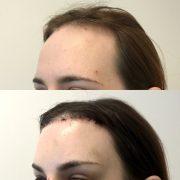 facial feminization surgery los