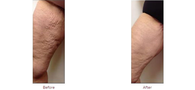 Medial Thigh Lift Boca Raton FL