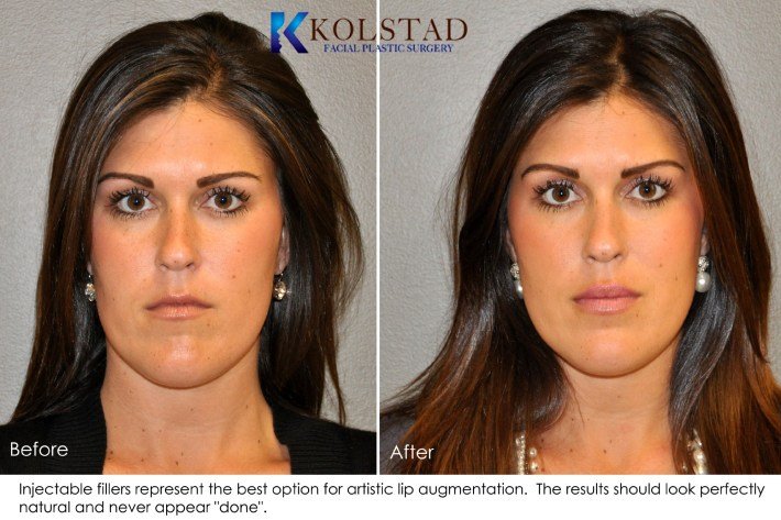 lip augmentation before & after gallery - dr. kolstad - san diego