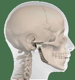 profile prosthesis [ 925 x 946 Pixel ]