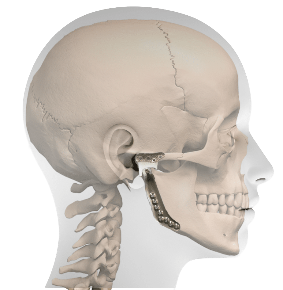 hight resolution of profile prosthesis