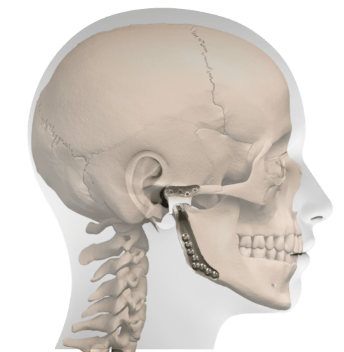 small resolution of profile prosthesis