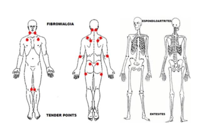 """alt=""""Fibromialgia ou Espondiloartrite"""""""