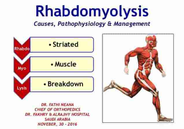 Rhabdomyolysis: Symptoms, Causes, and Treatments