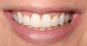 invisalign-after-Stockton Dental