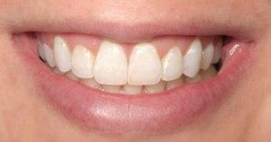 invisalign-after-Stockton Dental
