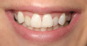 invisalign-before-Stockton Dentist