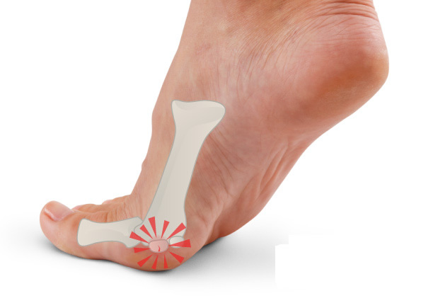 ball of foot and toe pain causes