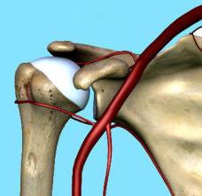 Artrosi di spalla