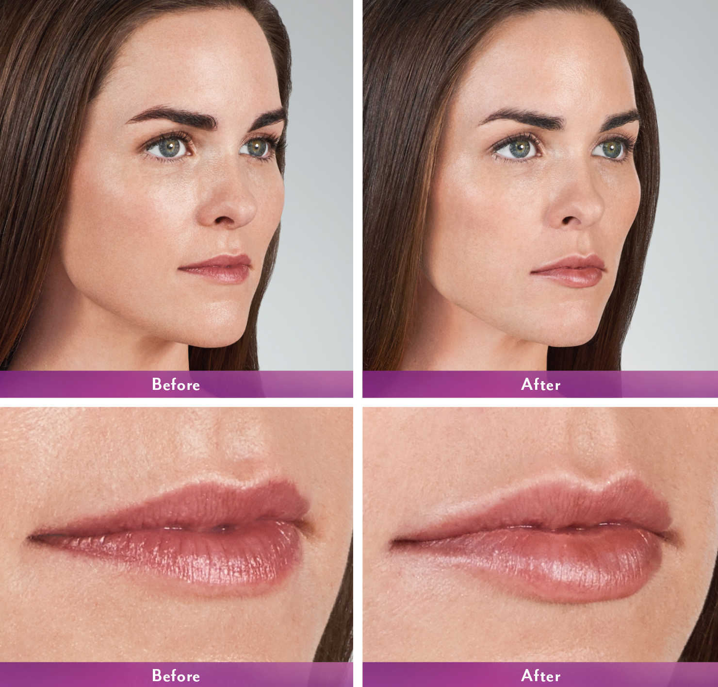 Image result for juvederm lips before and after