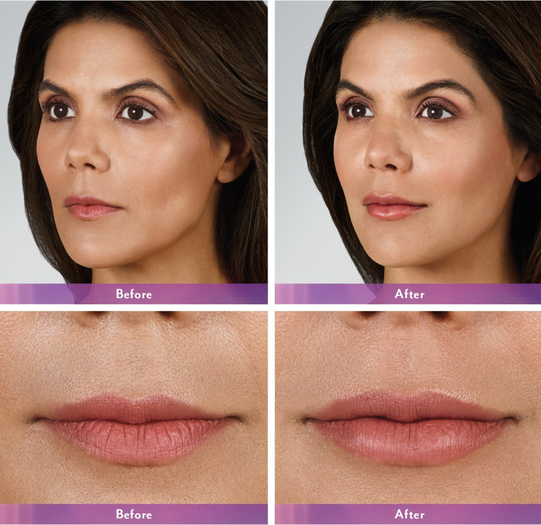 Juvederm Xc Lips Bruising   Amtmakeup co