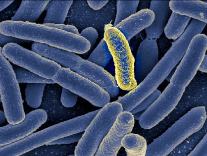 Are we too clean? The role of our gut bugs.