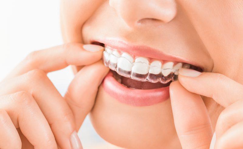 Visit Dental Clinic For Teeth Whitening Or Dental Implants Bruxism Treatment 187 Dental Splints 187 Dr Cristina Morfiri