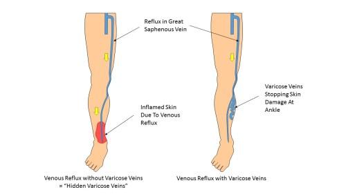 small resolution of understanding your varicose veins