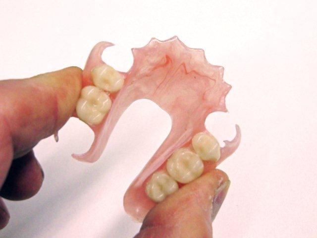 Flexite Denture Dr Muzzafar Zaman