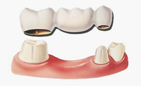 dental-bridge-cap-dr-muzzafar-zaman