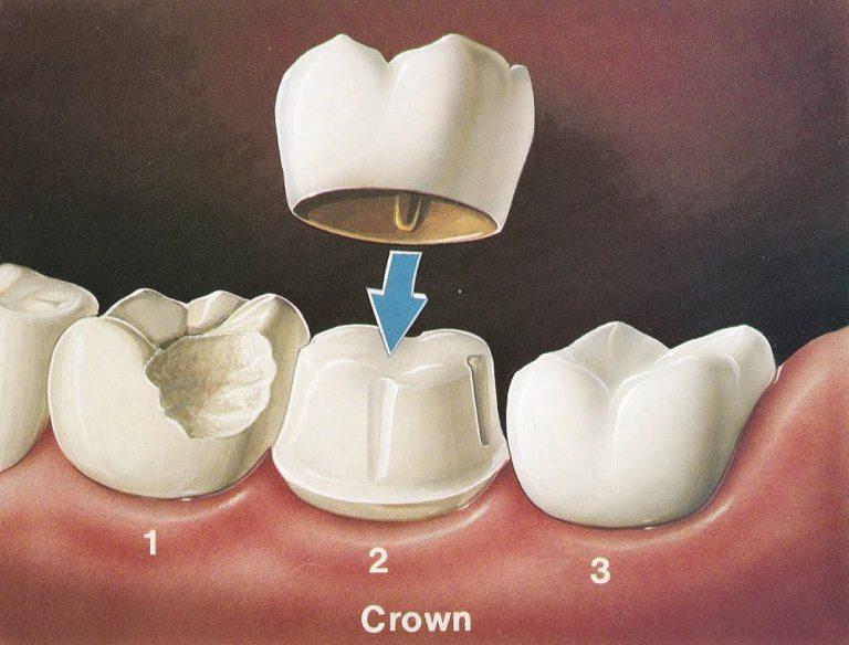 dr muzzafar zaman - crowns