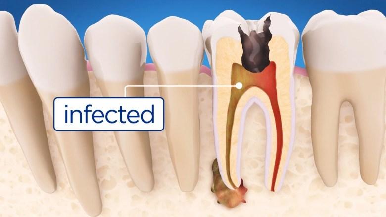 dr muzzafar zaman teeth