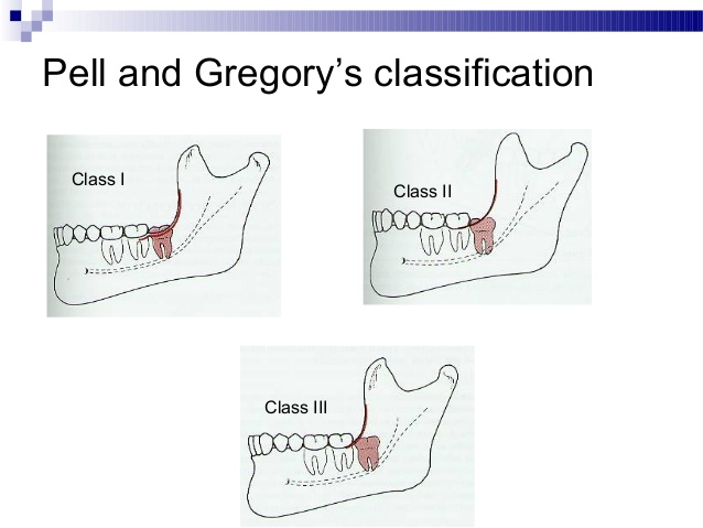 Image result for The Pell and Gregory Classification