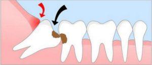 decay between wisdom teeth