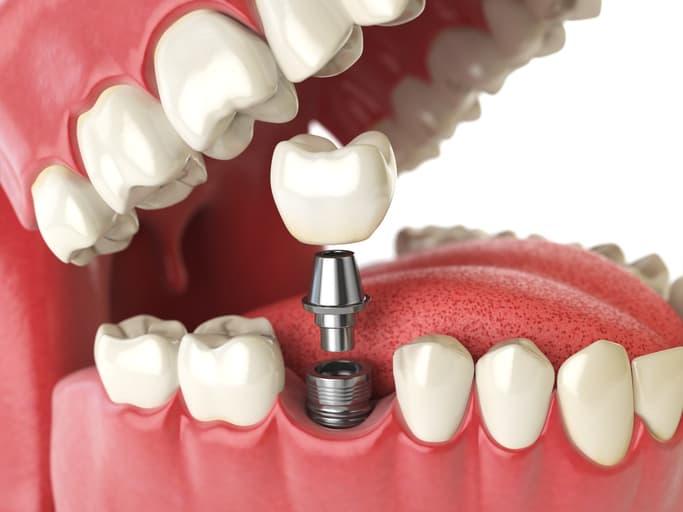 Bone-Grafting-for-Dental-Implants