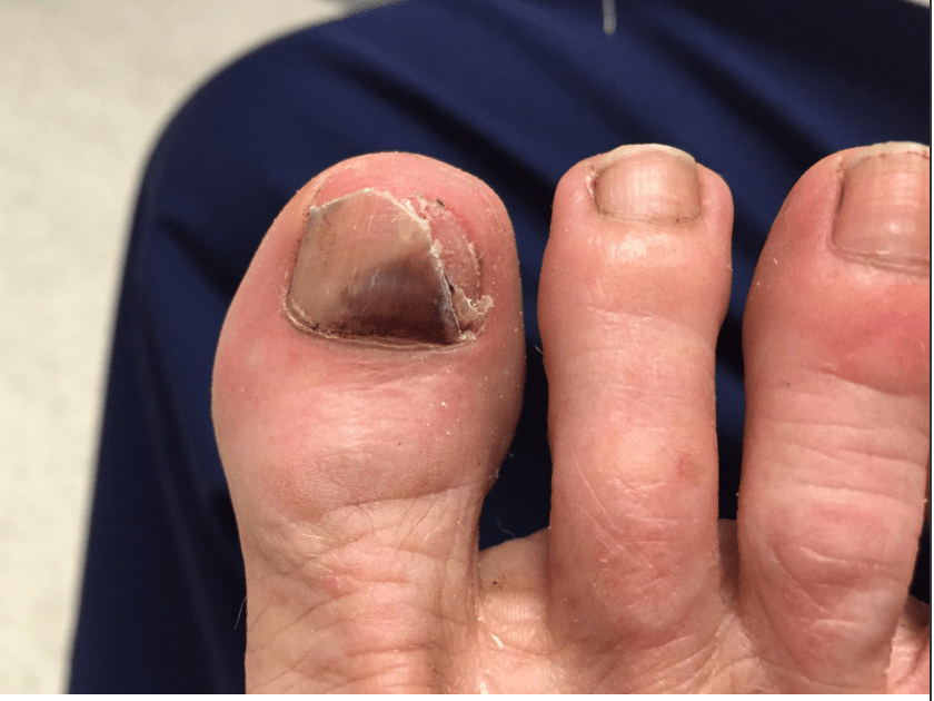 Melanoma Under The Toenail Dr Nicholas Campitelli