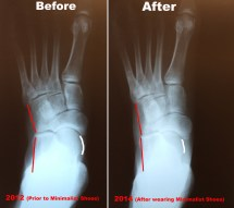 Flat Foot Surgery Before and After