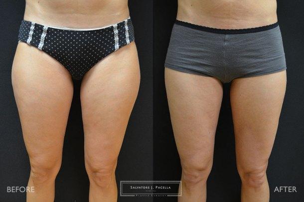 San Diego | La Jolla | Carmel Valley | Del Mar | Encinitas | Plastic Surgery | Body Contouring | Liposuction | Top Plastic Surgeon | Body Contouring