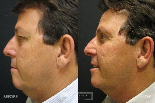 San Diego | La Jolla | Carmel Valley | Del Mar | Encinitas | Plastic Surgery |Cosmetic Surgery | Eyelid Expert | Eyelid Surgery | Eye Bags | Browlift | Blepharoplasty | Oculoplastic Surgery | Facial Rejuvenation | Top Plastic Surgeon