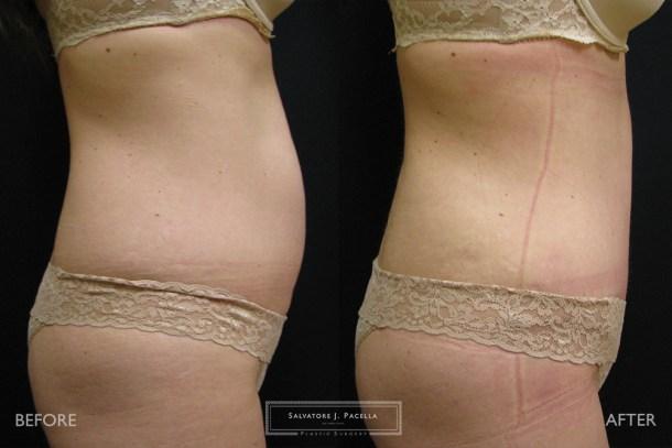 San Diego | La Jolla | Carmel Valley | Del Mar | Encinitas | Plastic Surgery | Body Contouring Tummy Tuck | Abdominoplasty | Top Plastic Surgeon