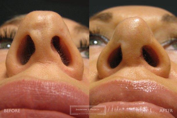 San Diego   La Jolla   Carmel Valley   Del Mar   Encinitas   Plastic Surgery   Cosmetic Surgery   Nose Job   Chin Implant   Top Plastic Surgeon   Scripps Plastic Surgeon   Rhinoplasty