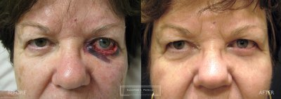 san diego | la jolla | carmel valley | del mar | scripps plastic surgeon | plastic surgery | mohs surgery | oculoplastic | eyelid surgery | eyelid expert
