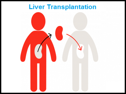 liver transplantation in pune