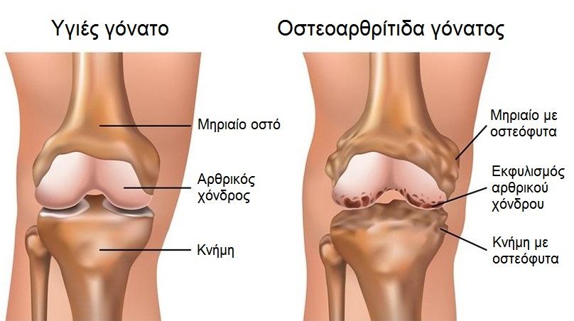 γόνατος ανατομία