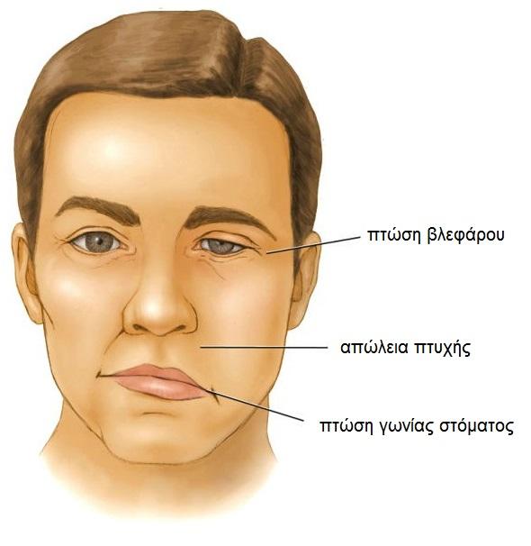 προσωπικού νεύρου συμπτώματα
