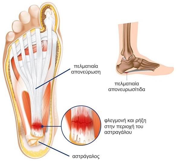 απονευρωσίτιδα συμπτώματα
