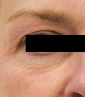 elastiderm eye 3 after