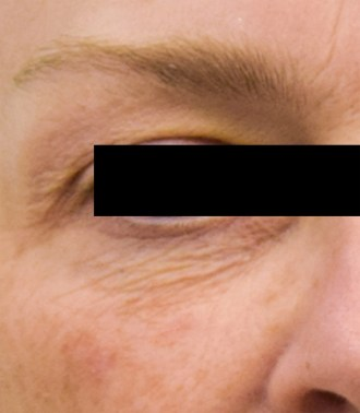 elastiderm eye 3 before