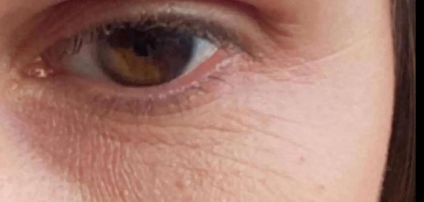 Dark cirlcle eyes