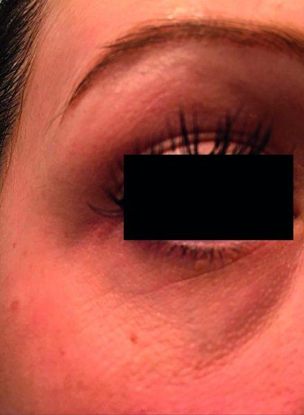 elastiderm eye 2 before