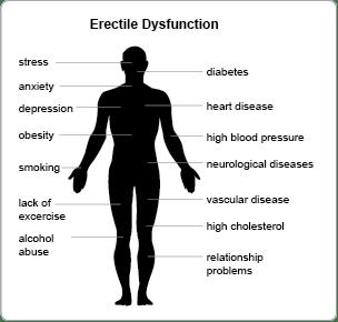 Erectile Dysfunction: Diagnosis &Treatment