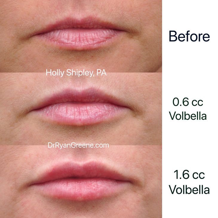 volbella lips | Wajilips co