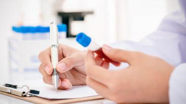 blood test PSA BPH prostate cancer screening