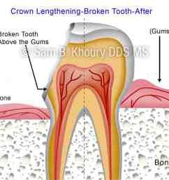 crown lengthening broken tooth 2 preview [ 1280 x 838 Pixel ]
