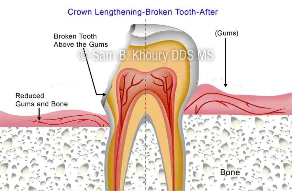 medium resolution of crown lengthening broken tooth 2 preview