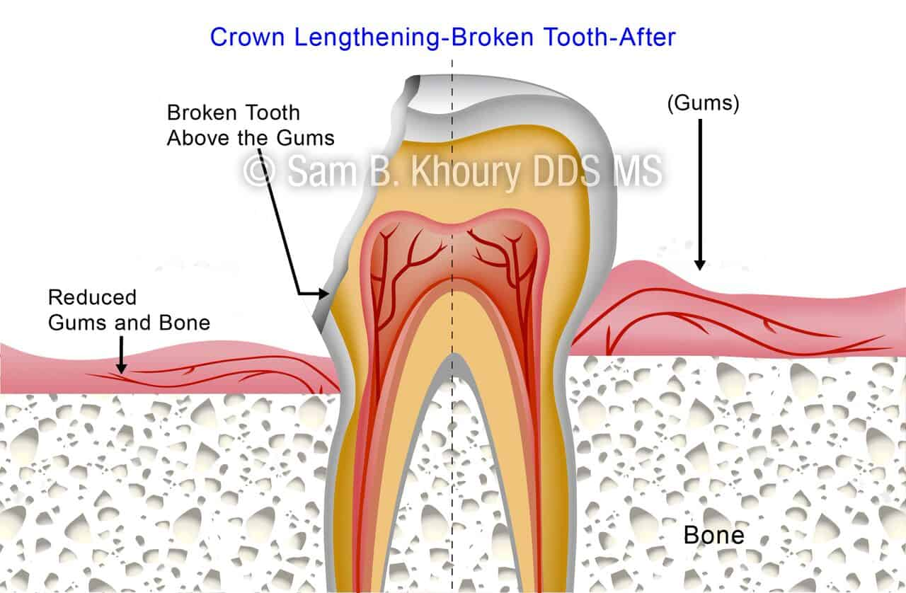 hight resolution of crown lengthening broken tooth 2 preview