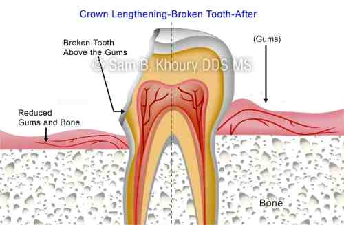 small resolution of crown lengthening broken tooth 2 preview