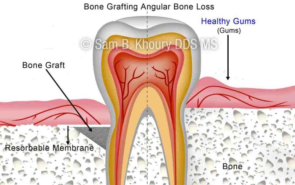 medium resolution of angular bone loss after preview